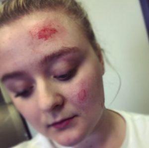 O cão não conseguiu alertar a garota a tempo e ela acabou se machucando. (Foto: Reprodução / Hailey Ashmore)