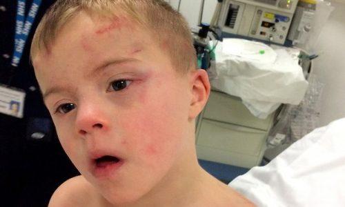 O menino sofreu queimaduras em seus braços e algumas contusões na cabeça, mas já está bem melhor. (Foto: Reprodução / Aaron Duffy / PA)